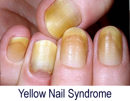 Fingernail Problems Split Yellow Or Thick Nails Macomb Hand